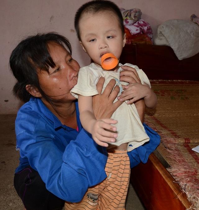 Bé đang được bà ngoại nuôi dưỡng, vì không có tiền chữa trị nên bệnh của bé Minh hiện ngày càng trầm trọng.